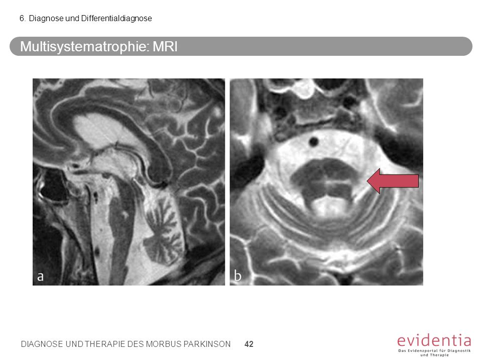 Multisystematrophie: MRI