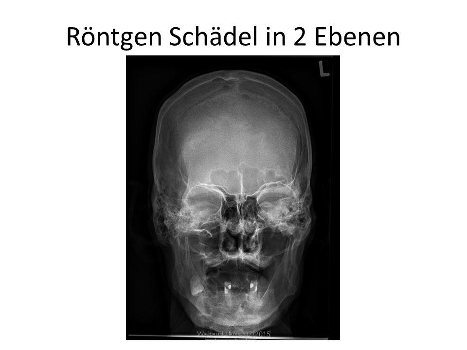 Röntgen Schädel in 2 Ebenen