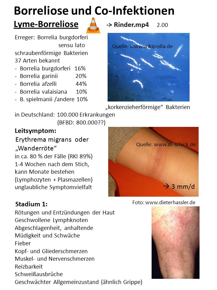 Borreliose und Co-Infektionen