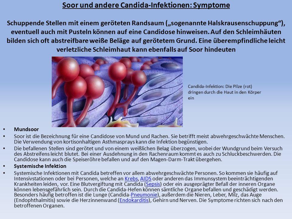 """Soor und andere Candida-Infektionen: Symptome Schuppende Stellen mit einem geröteten Randsaum (""""sogenannte Halskrausenschuppung ), eventuell auch mit Pusteln können auf eine Candidose hinweisen. Auf den Schleimhäuten bilden sich oft abstreifbare weiße Beläge auf gerötetem Grund. Eine überempfindliche leicht verletzliche Schleimhaut kann ebenfalls auf Soor hindeuten"""