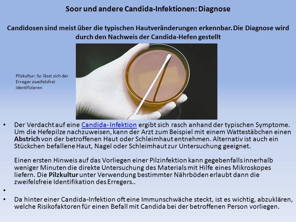 Soor und andere Candida-Infektionen: Diagnose Candidosen sind meist über die typischen Hautveränderungen erkennbar. Die Diagnose wird durch den Nachweis der Candida-Hefen gestellt