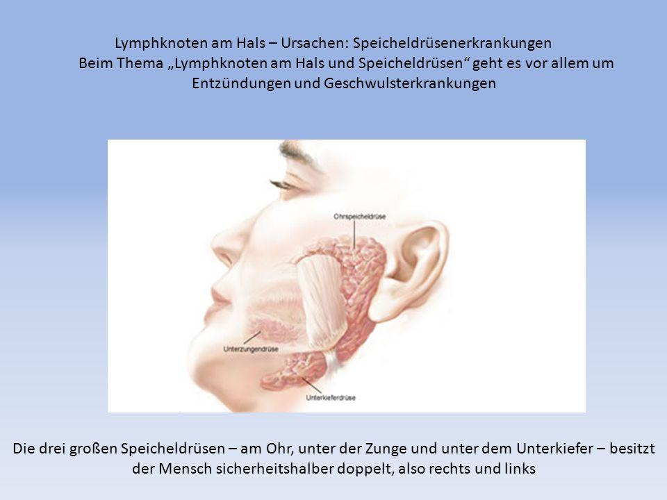 """Lymphknoten am Hals – Ursachen: Speicheldrüsenerkrankungen Beim Thema """"Lymphknoten am Hals und Speicheldrüsen geht es vor allem um Entzündungen und Geschwulsterkrankungen"""