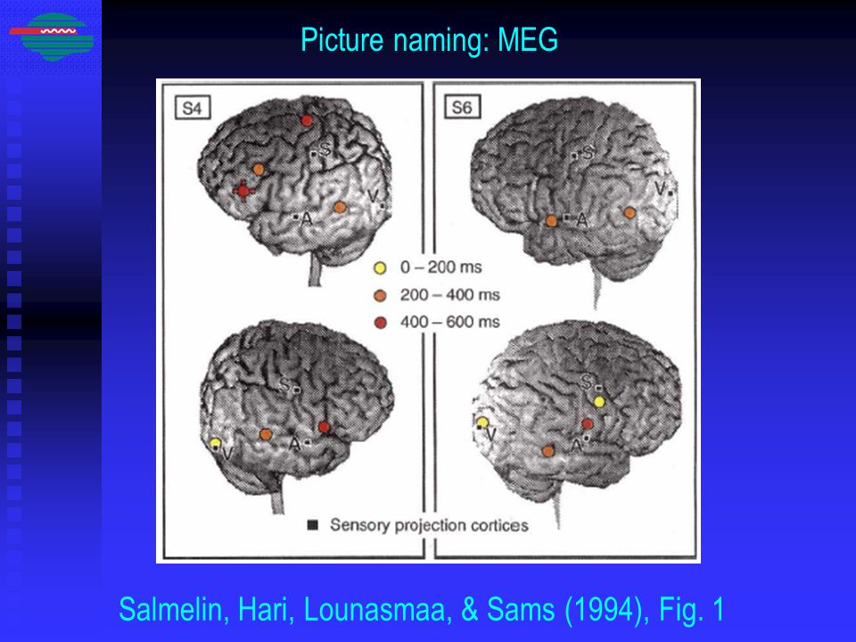 Salmelin, Hari, Lounasmaa, & Sams (1994), Fig. 1
