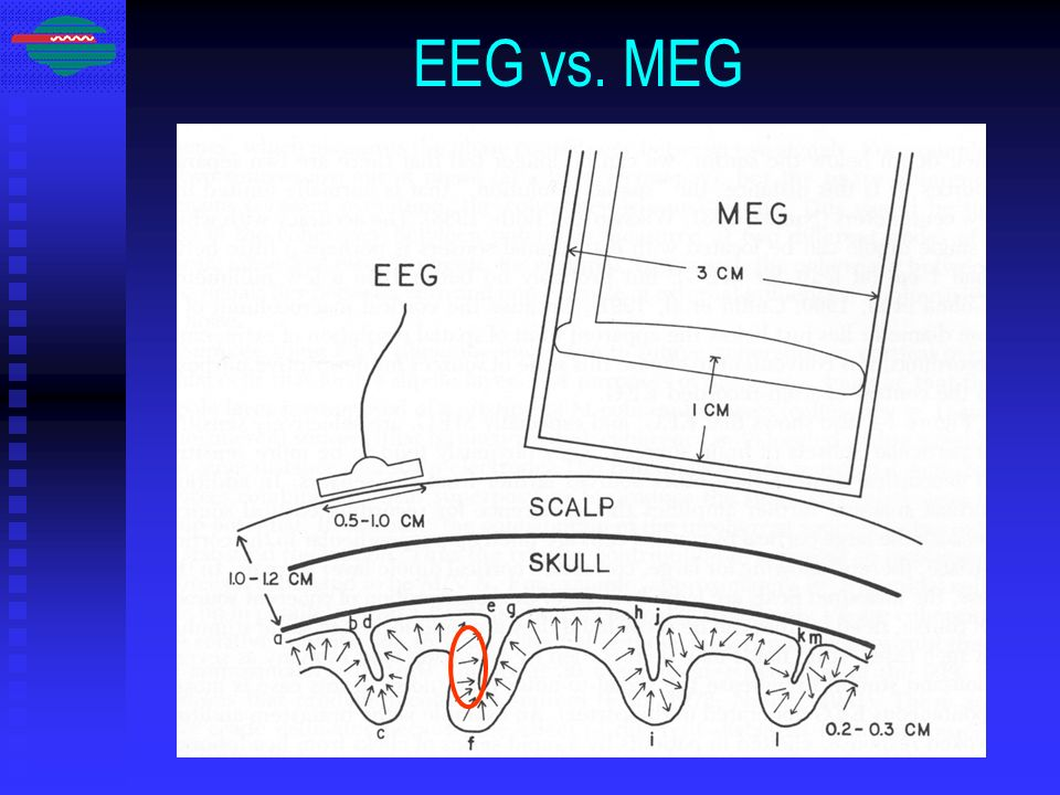 EEG vs. MEG