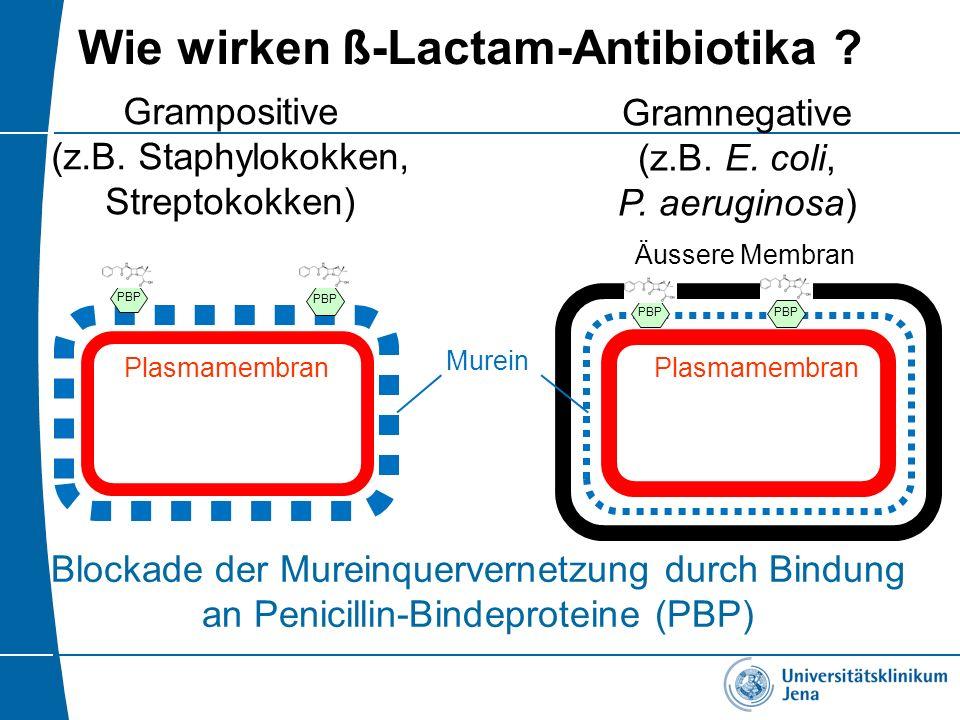 Wie wirken ß-Lactam-Antibiotika