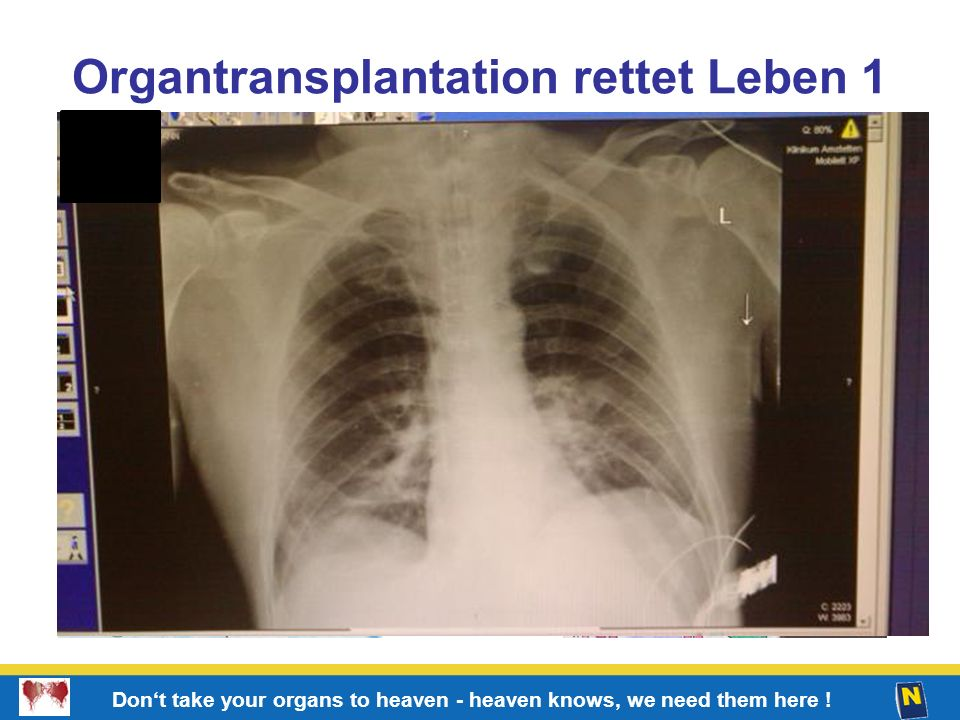 Organtransplantation rettet Leben 1
