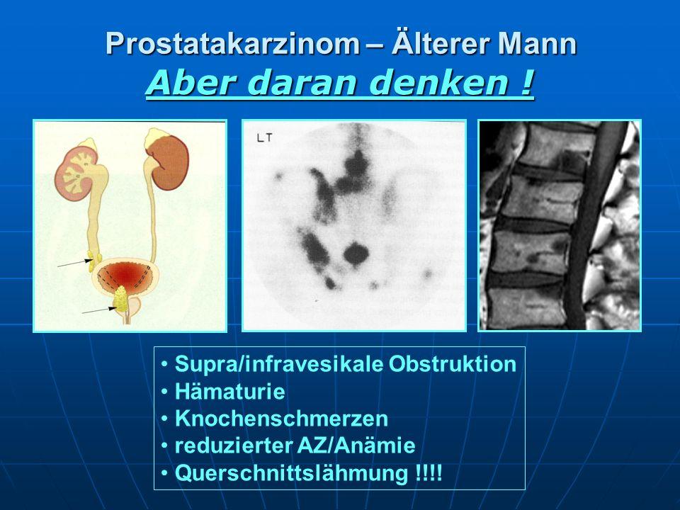 Prostatakarzinom – Älterer Mann