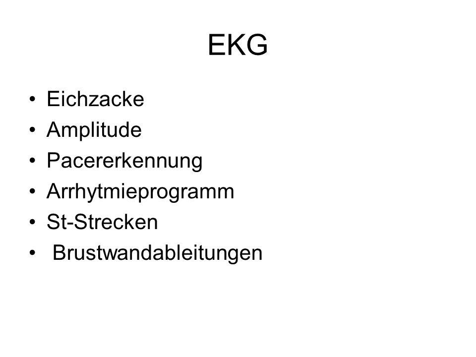EKG Eichzacke Amplitude Pacererkennung Arrhytmieprogramm St-Strecken