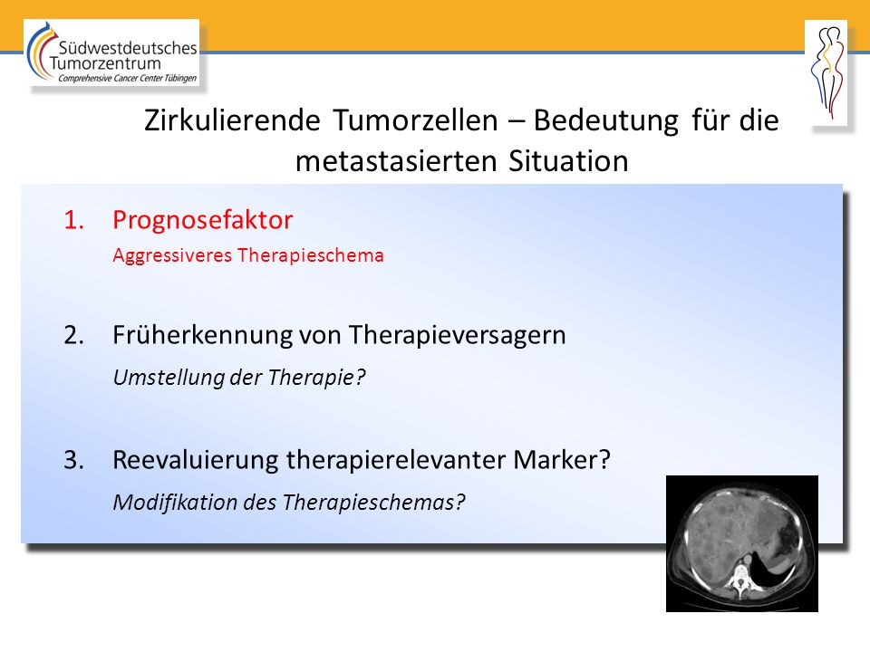 Zirkulierende Tumorzellen – Bedeutung für die metastasierten Situation