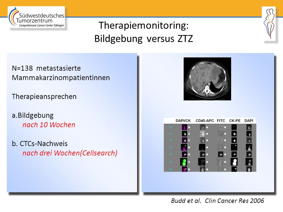 Therapiemonitoring: Bildgebung versus ZTZ