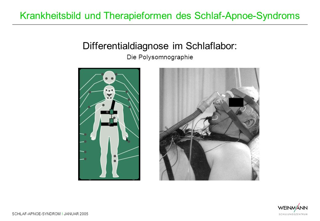 Differentialdiagnose im Schlaflabor: