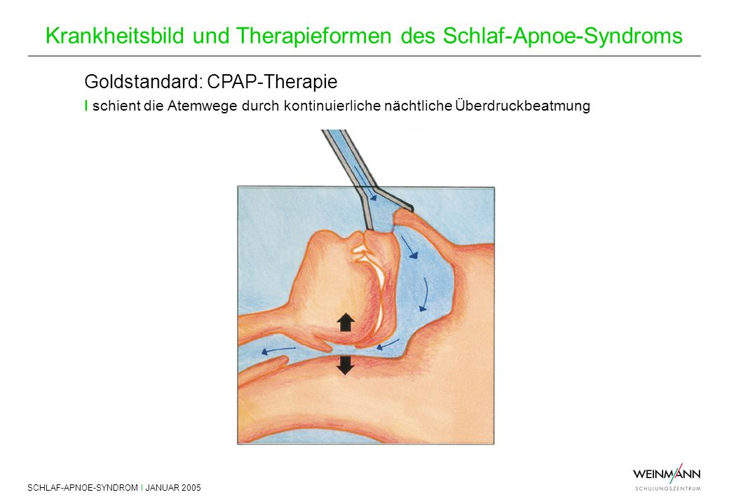 Goldstandard: CPAP-Therapie