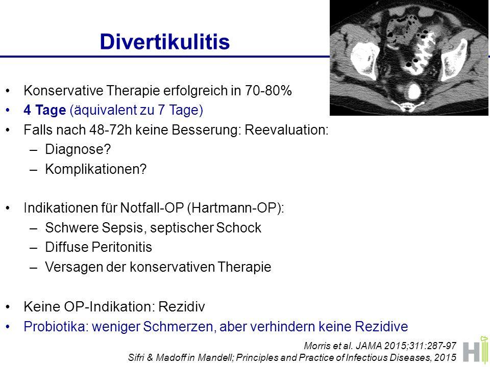 Divertikulitis Keine OP-Indikation: Rezidiv