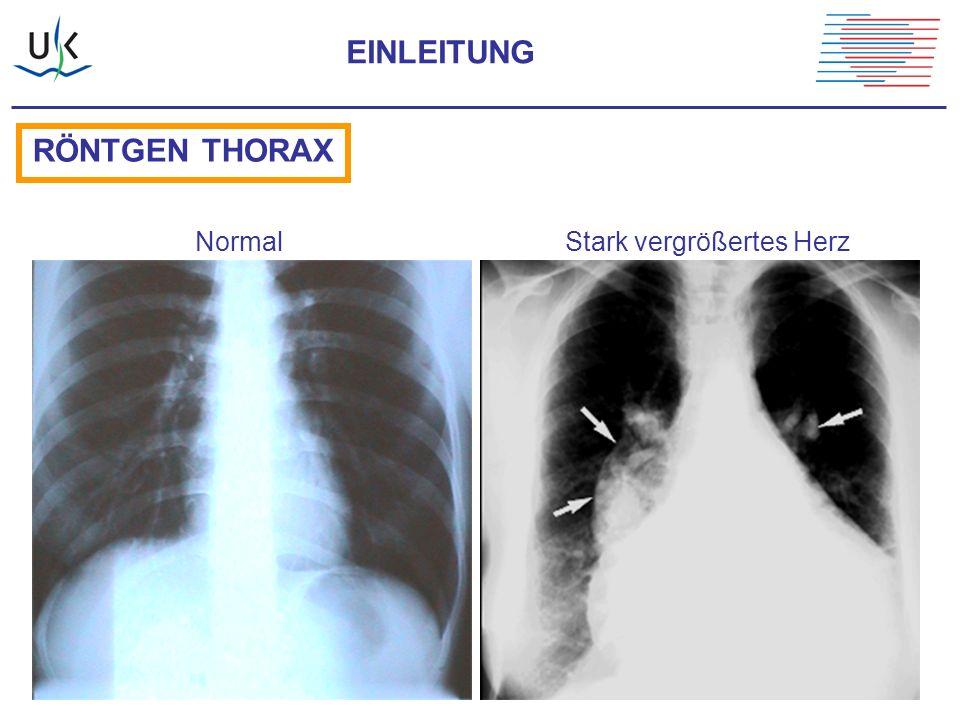 EINLEITUNG RÖNTGEN THORAX Normal Stark vergrößertes Herz