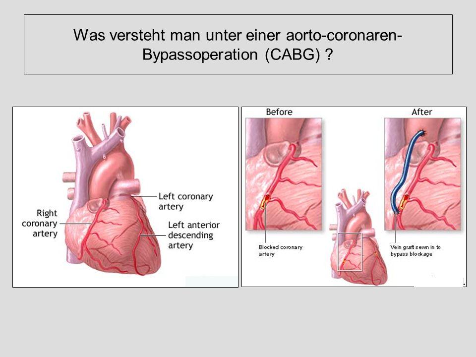 Was versteht man unter einer aorto-coronaren-Bypassoperation (CABG)