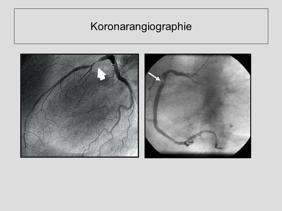 Koronarangiographie