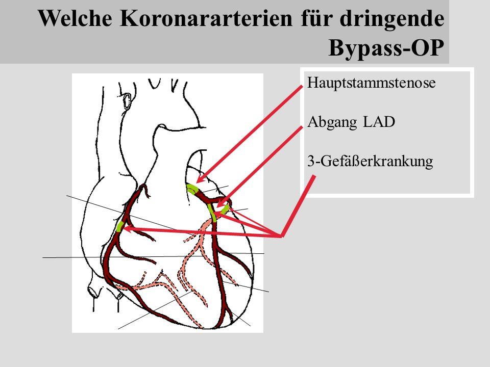 Niedlich Anatomie Und Physiologie Der Koronararterien Galerie ...