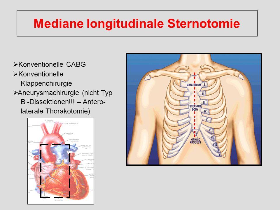 Mediane longitudinale Sternotomie
