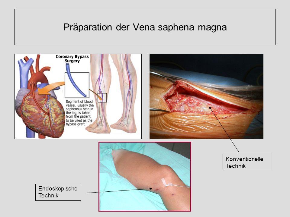 Präparation der Vena saphena magna