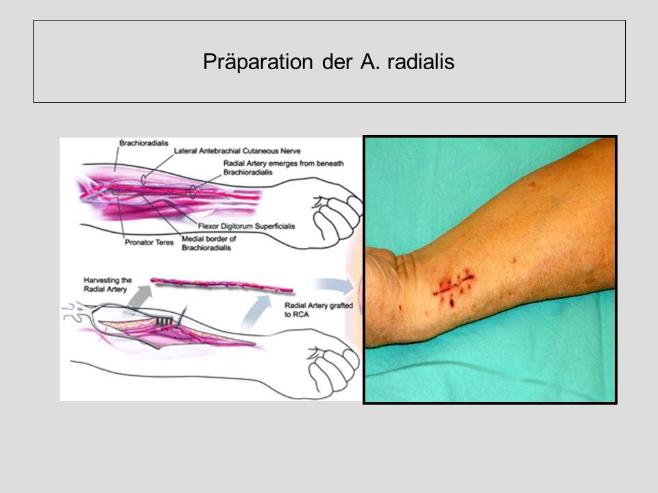 Präparation der A. radialis