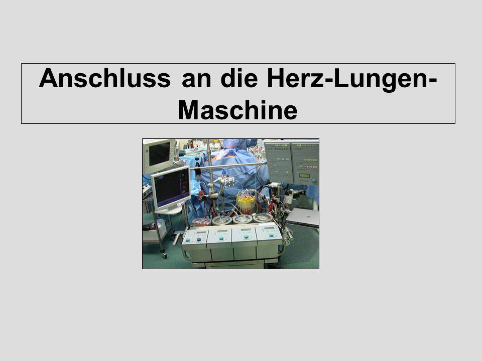 Anschluss an die Herz-Lungen-Maschine
