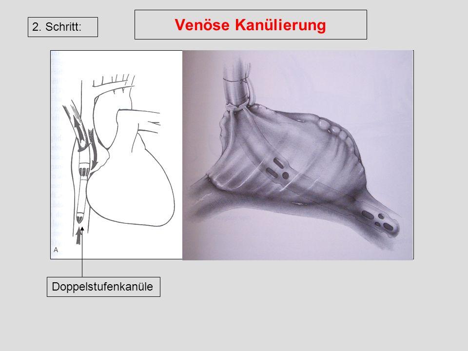 Venöse Kanülierung 2. Schritt: Doppelstufenkanüle