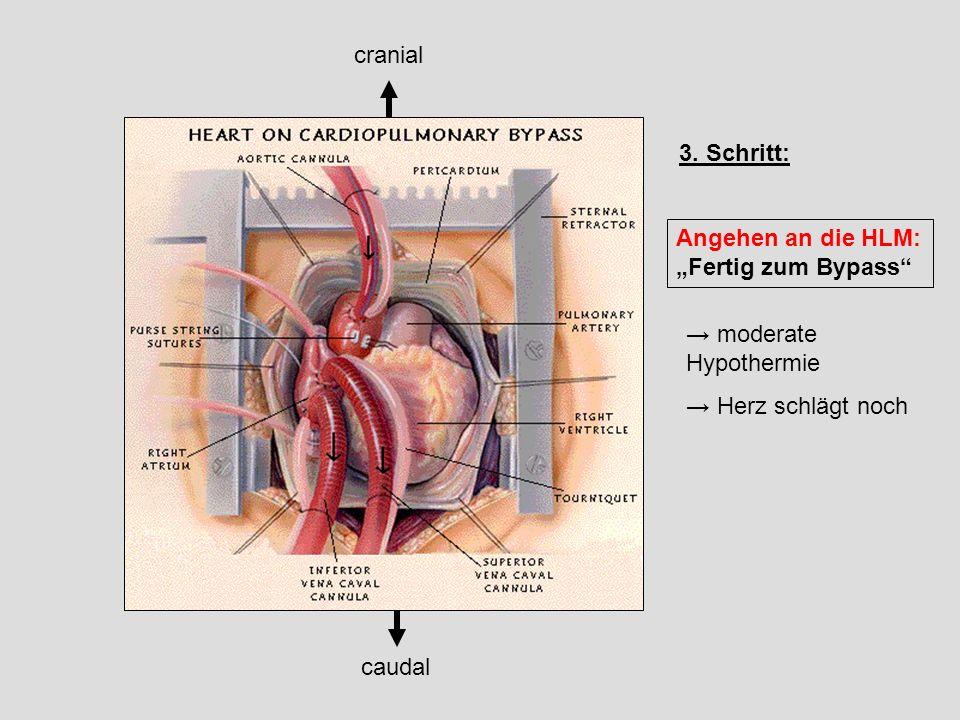 "cranial 3. Schritt: Angehen an die HLM: ""Fertig zum Bypass → moderate Hypothermie. → Herz schlägt noch."