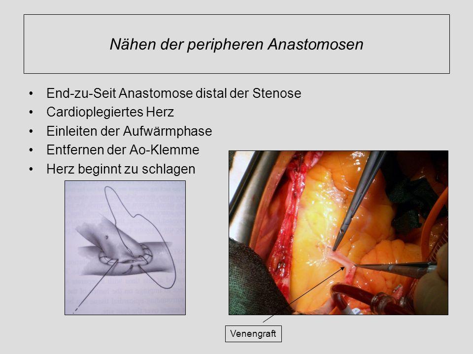 Nähen der peripheren Anastomosen