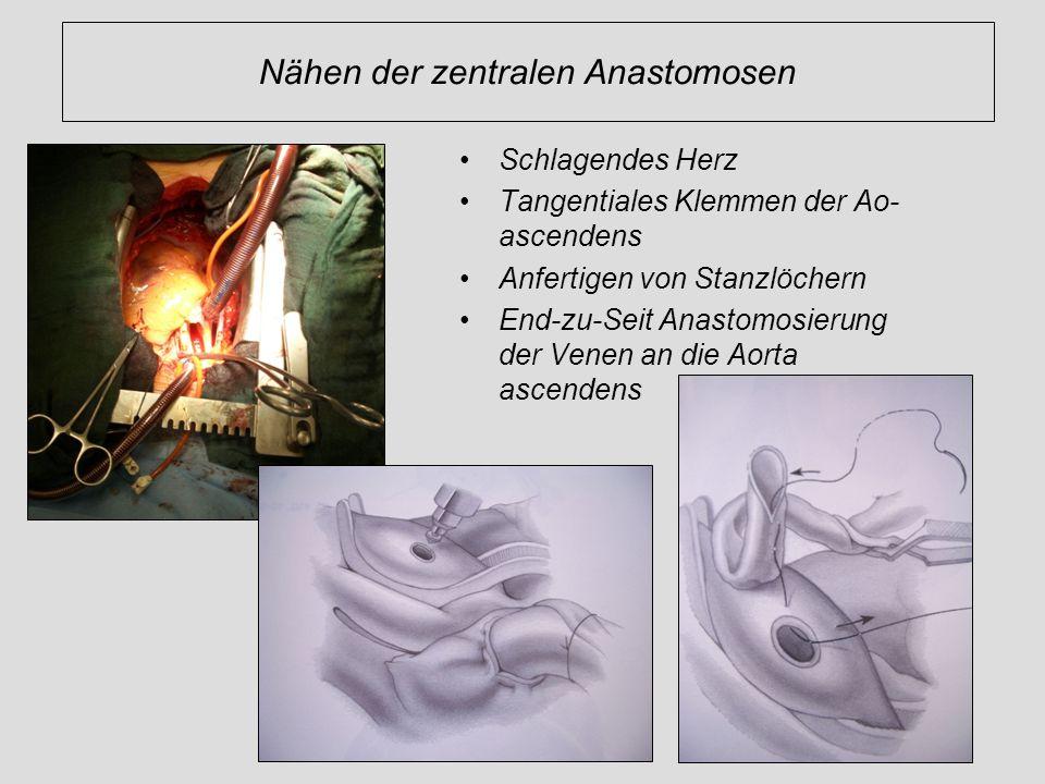Nähen der zentralen Anastomosen