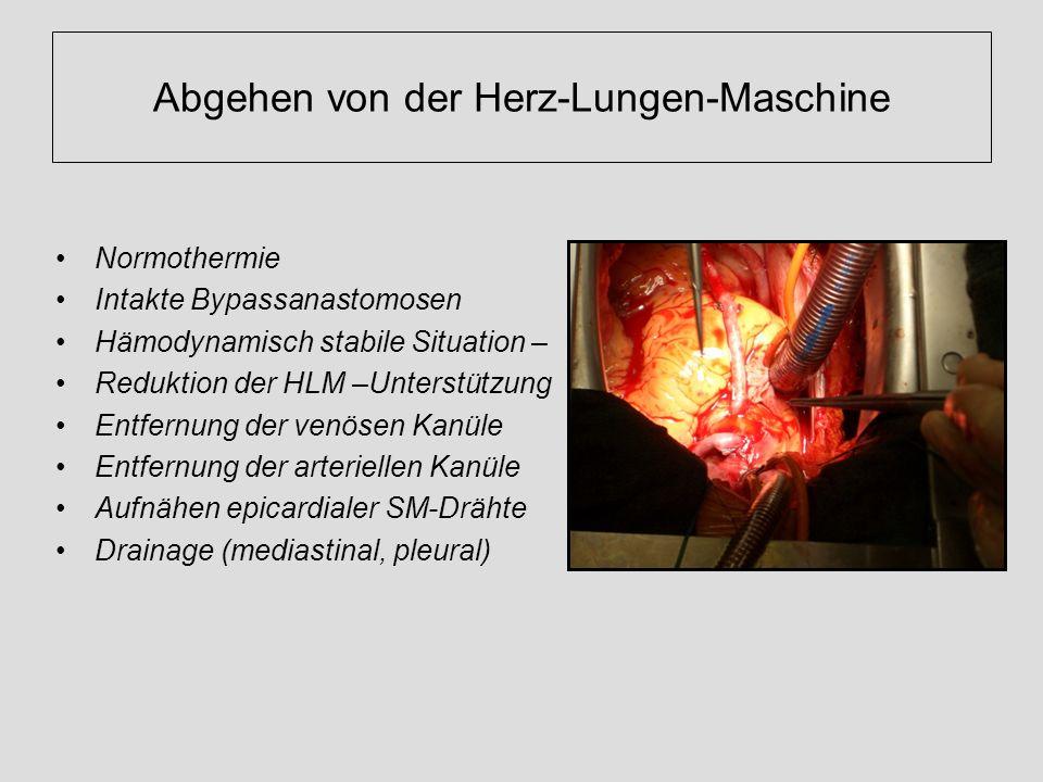 Abgehen von der Herz-Lungen-Maschine