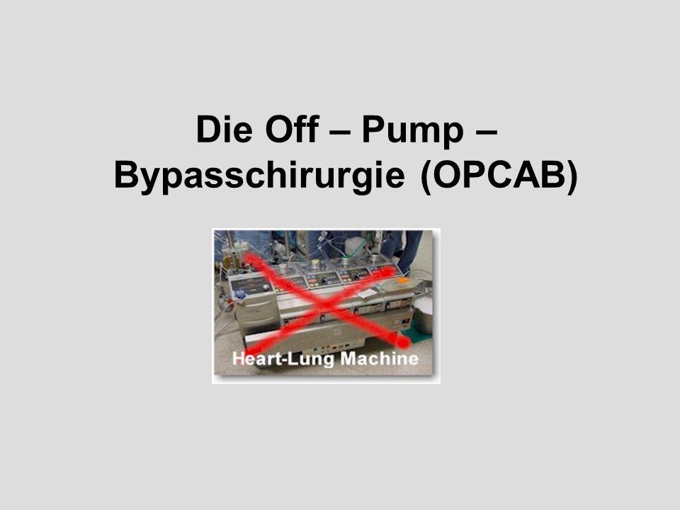 Die Off – Pump – Bypasschirurgie (OPCAB)