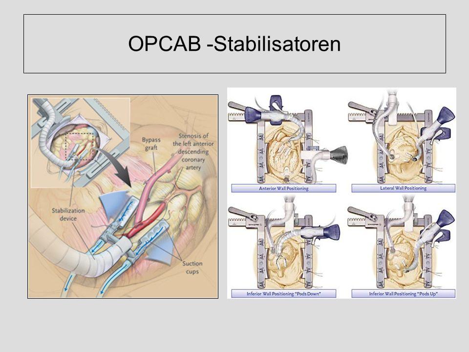 OPCAB -Stabilisatoren