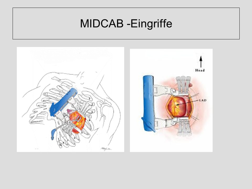 MIDCAB -Eingriffe