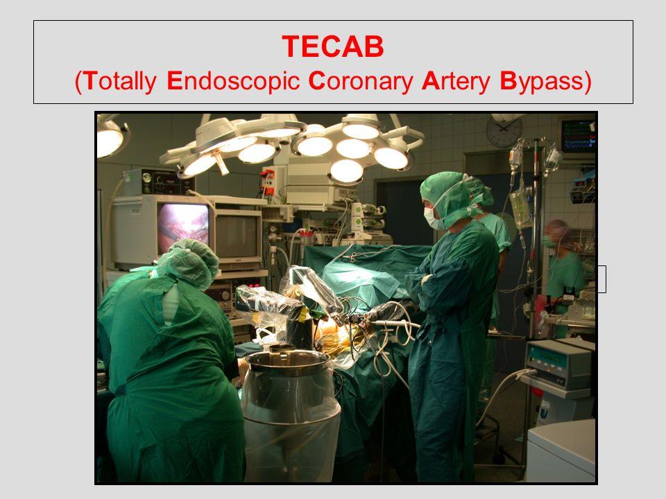 TECAB (Totally Endoscopic Coronary Artery Bypass)
