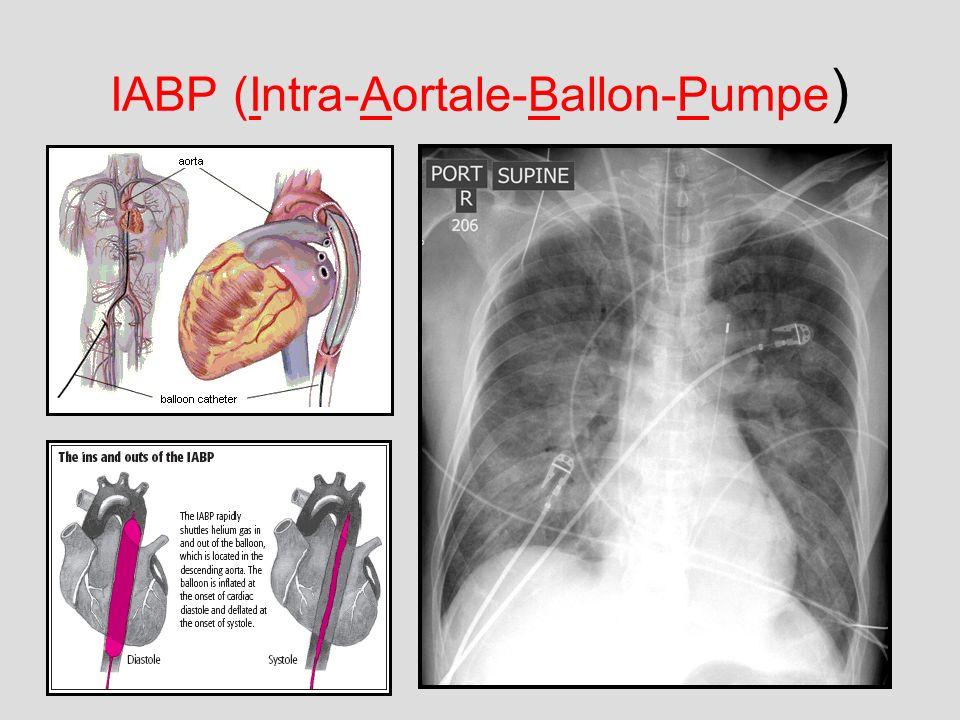 IABP (Intra-Aortale-Ballon-Pumpe)