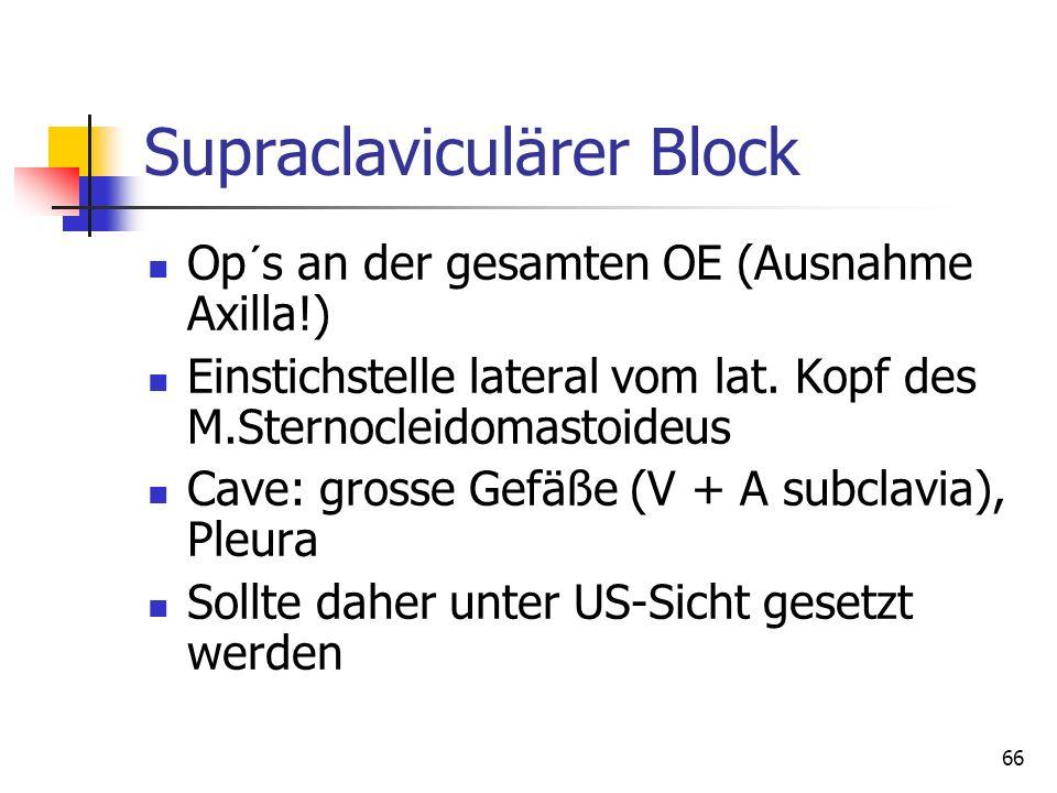 Supraclaviculärer Block