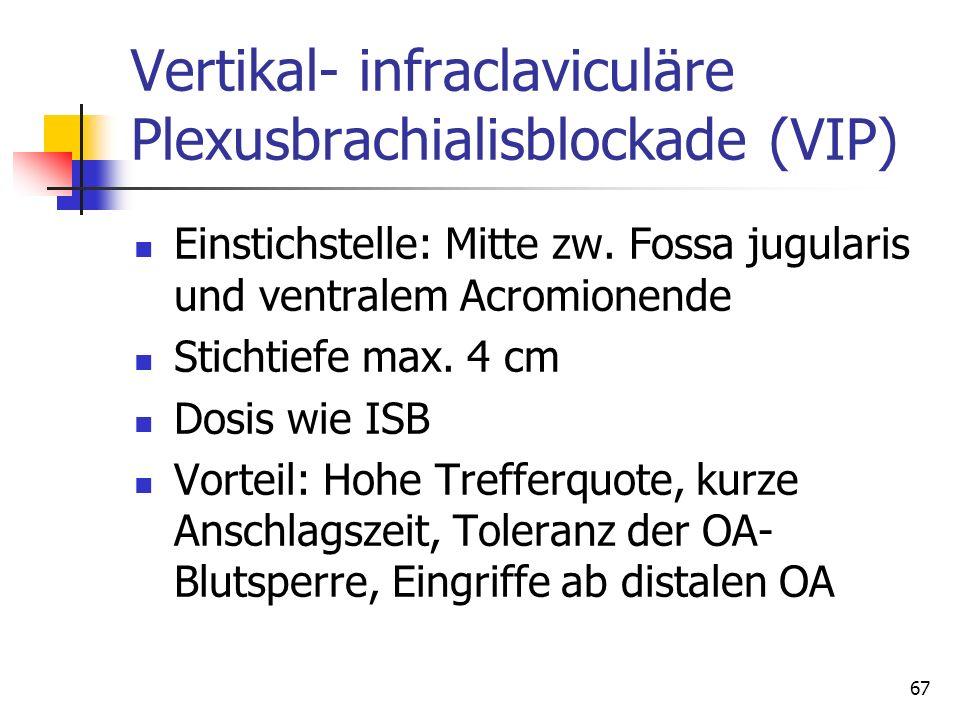 Vertikal- infraclaviculäre Plexusbrachialisblockade (VIP)