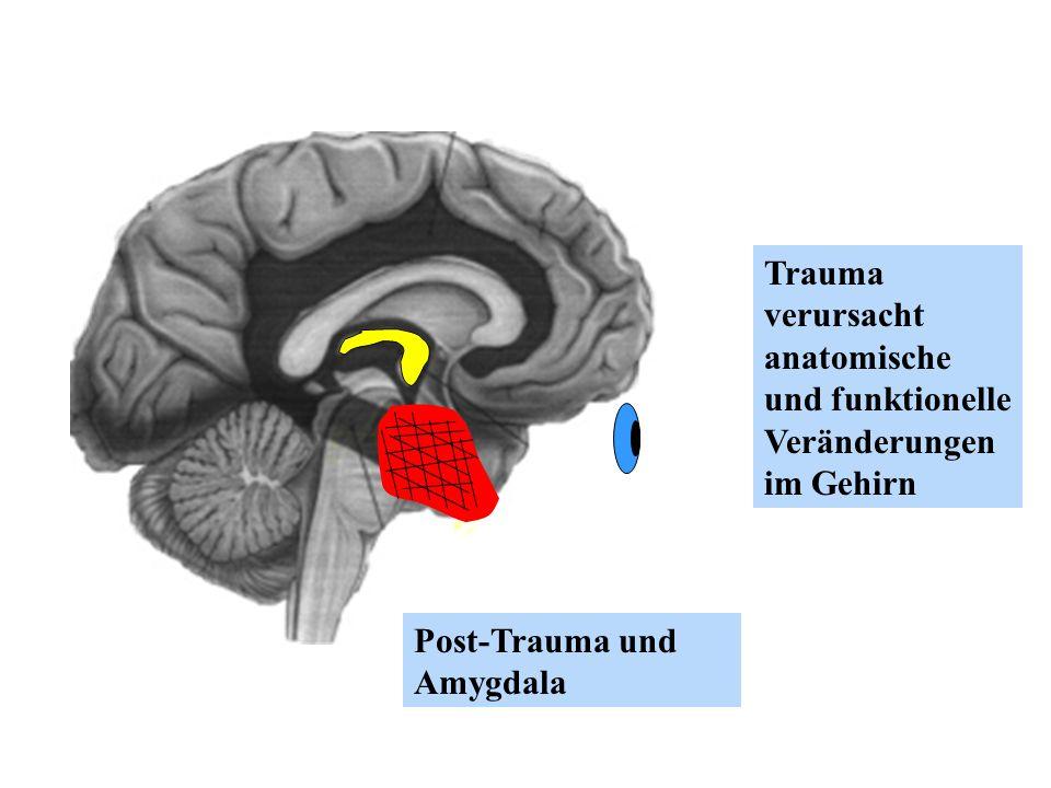 Trauma verursacht anatomische und funktionelle Veränderungen im Gehirn