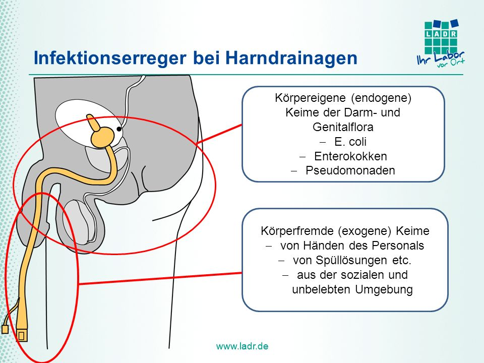Infektionserreger bei Harndrainagen