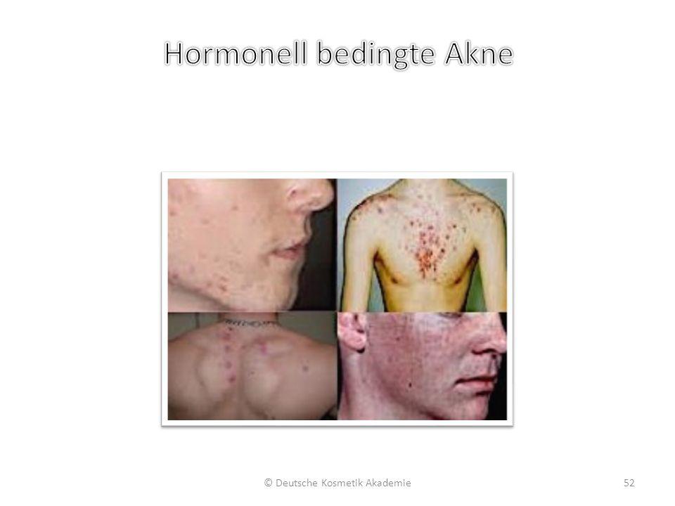 Hormonell bedingte Akne