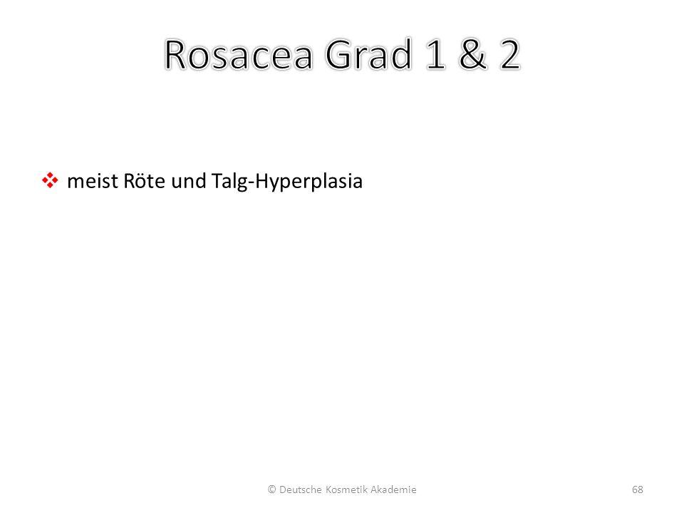 Rosacea Stufe 3: Teleangiektasie