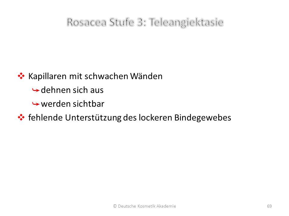 Rosacea Stufe 4: Teleangiektasie