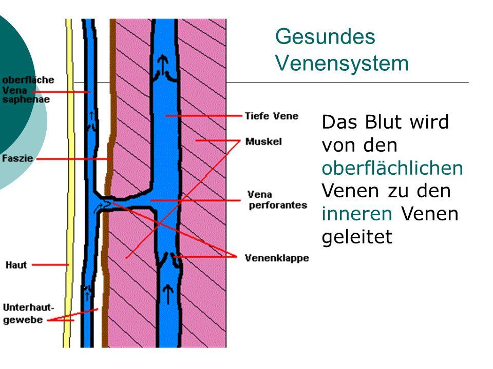 Gesundes Venensystem Das Blut wird von den oberflächlichen Venen zu den inneren Venen geleitet