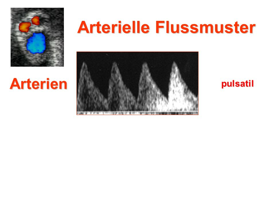Arterielle Flussmuster