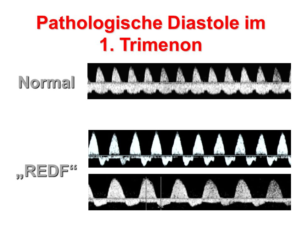 Pathologische Diastole im 1. Trimenon