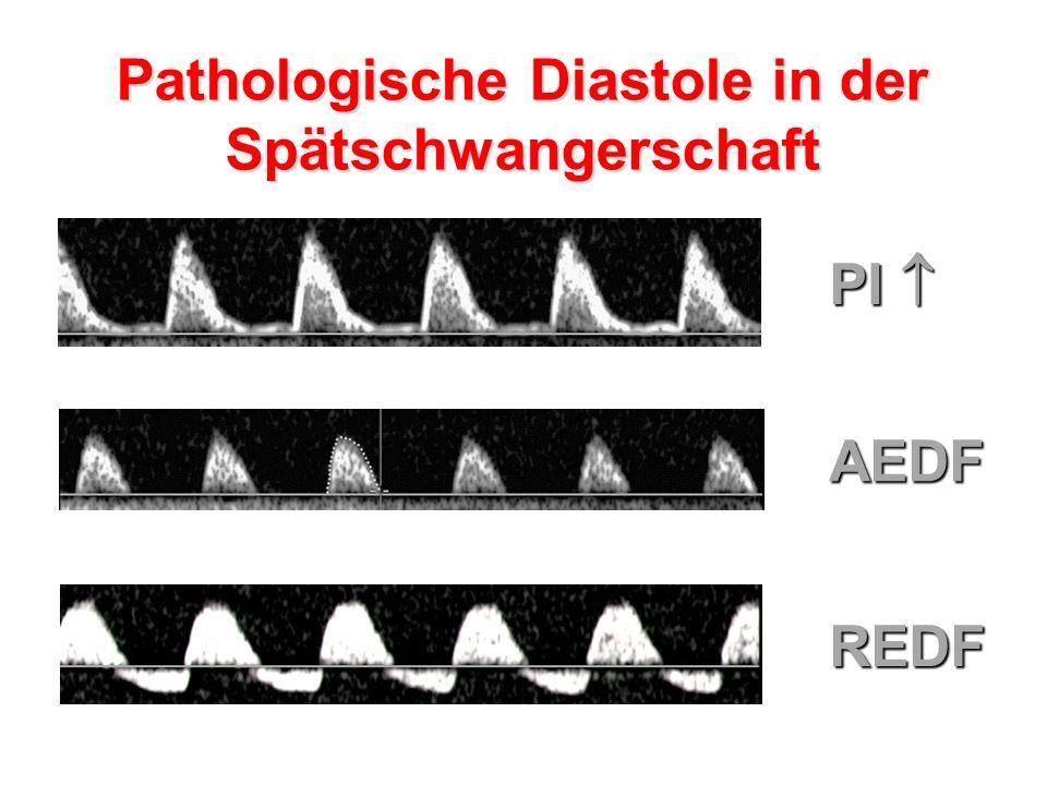 Pathologische Diastole in der Spätschwangerschaft