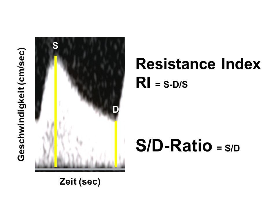 S/D-Ratio = S/D Resistance Index RI = S-D/S S Geschwindigkeit (cm/sec)