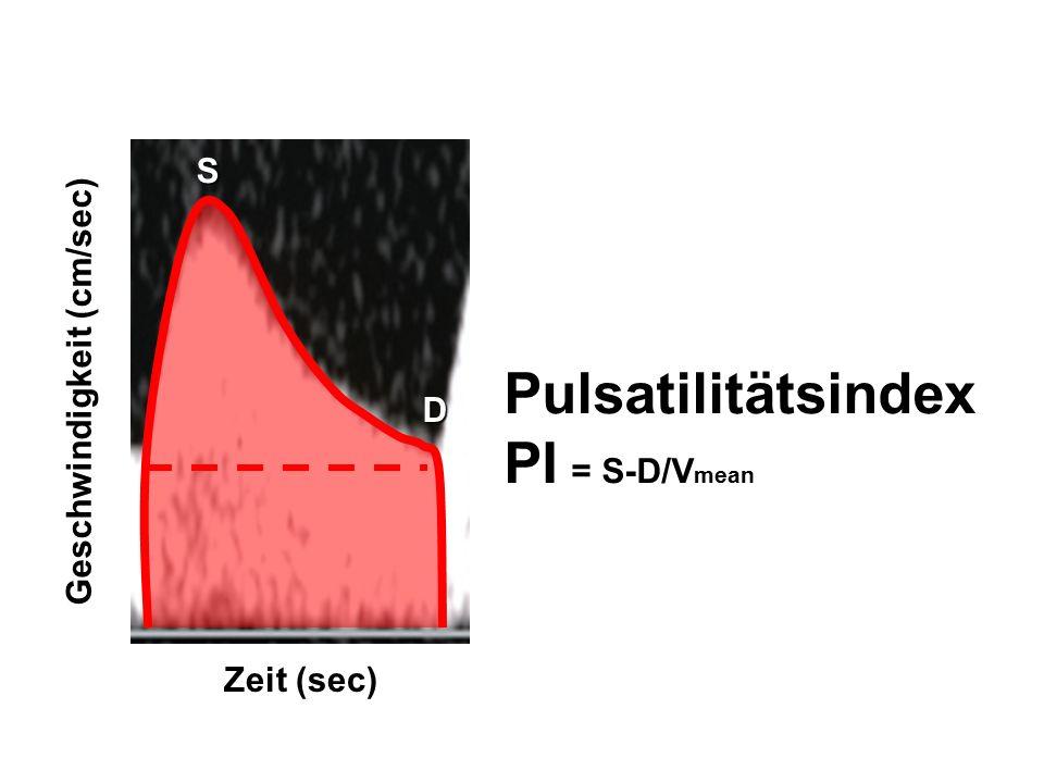 Pulsatilitätsindex PI = S-D/Vmean S Geschwindigkeit (cm/sec) D