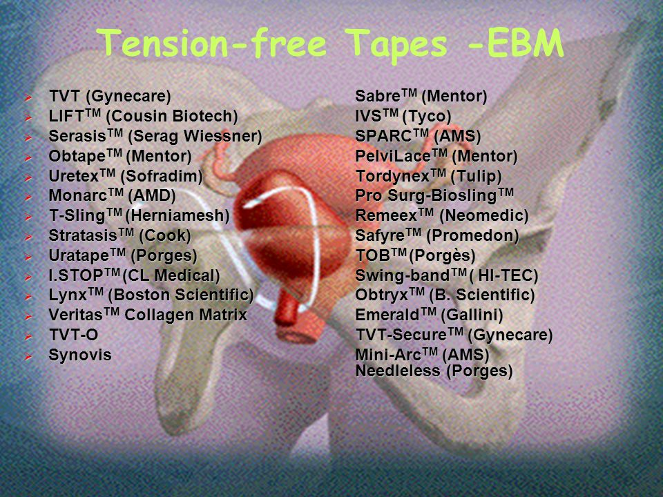Tension-free Tapes -EBM