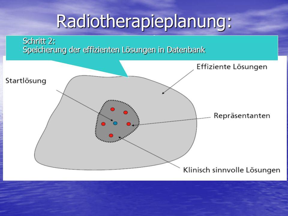 Radiotherapieplanung: Vorgehen
